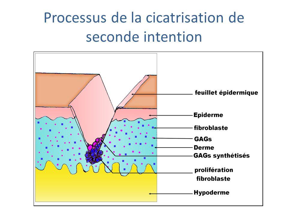 Communication par contact processus de la cicatrisation de seconde