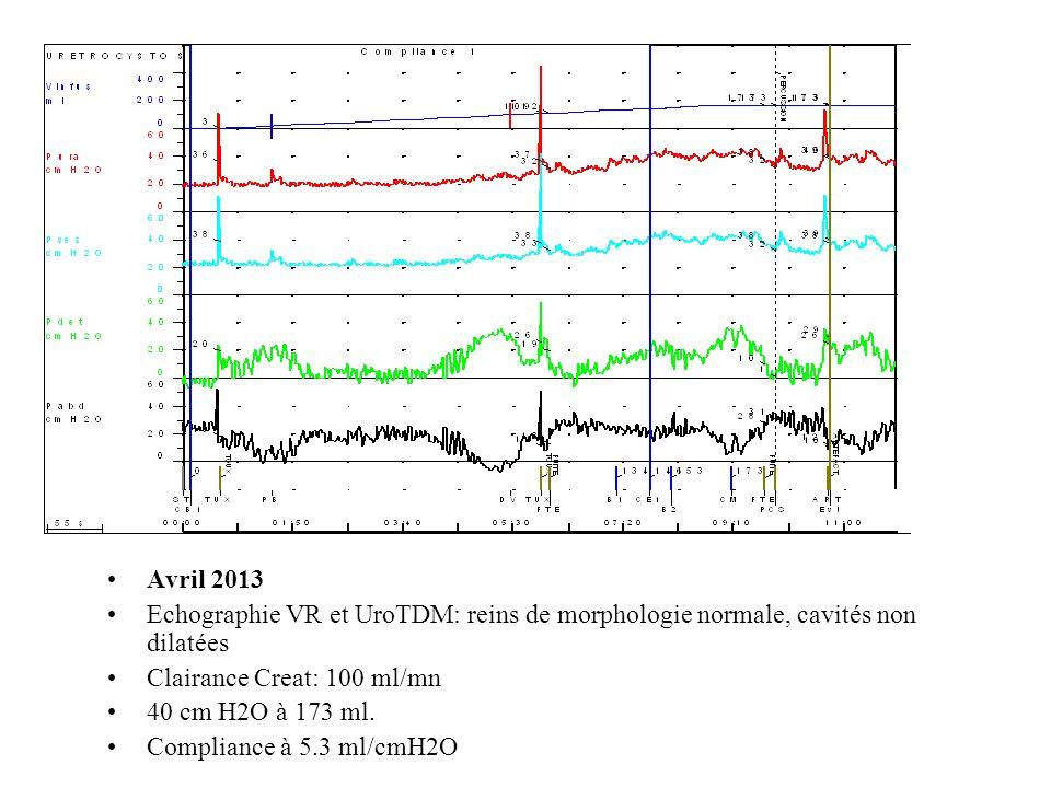 Avril 2013 Echographie VR et UroTDM: reins de morphologie normale, cavités non dilatées Clairance Creat: 100 ml/mn 40 cm H2O à 173 ml.
