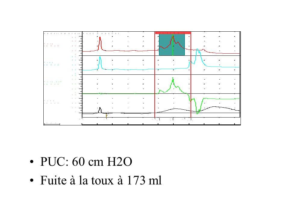 PUC: 60 cm H2O Fuite à la toux à 173 ml