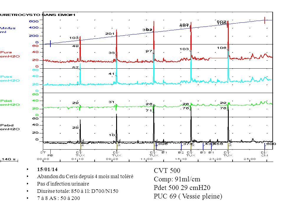15/01/14 Abandon du Ceris depuis 4 mois mal toléré Pas d infection urinaire Diurèse totale: 850 à 1l: D700/N150 7 à 8 AS : 50 à 200 CVT 500 Comp: 91ml/cm Pdet 500 29 cmH20 PUC 69 ( Vessie pleine)