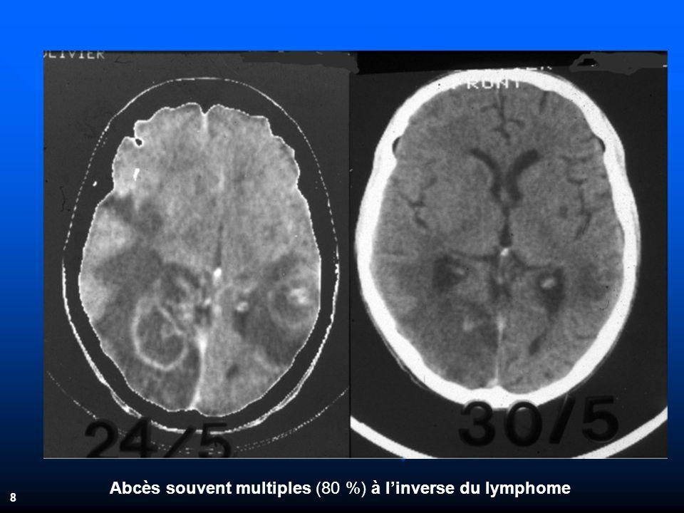 Abcès souvent multiples (80 %) à linverse du lymphome 8