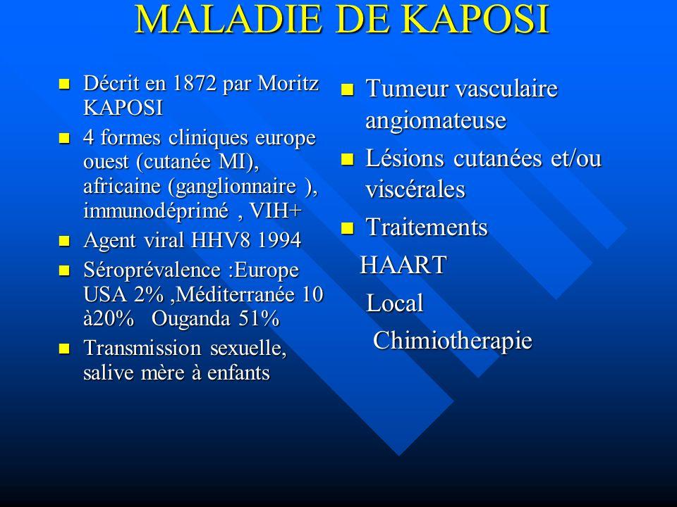 MALADIE DE KAPOSI Décrit en 1872 par Moritz KAPOSI Décrit en 1872 par Moritz KAPOSI 4 formes cliniques europe ouest (cutanée MI), africaine (ganglionn