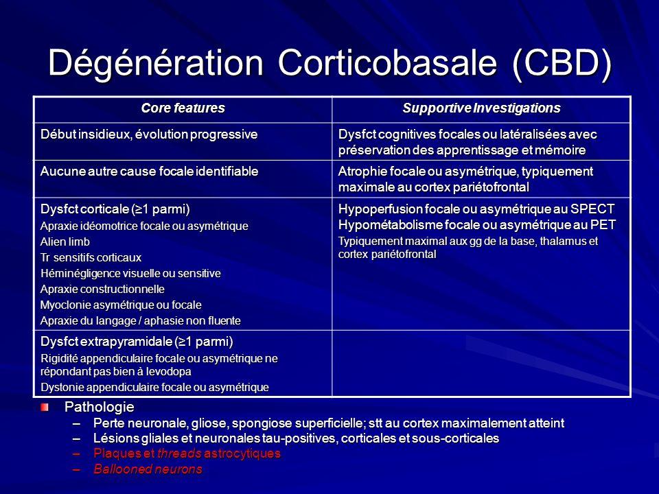 Dégénération Corticobasale (CBD) Core features Supportive Investigations Début insidieux, évolution progressive Dysfct cognitives focales ou latéralis