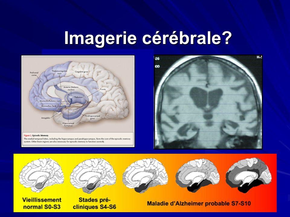 Imagerie cérébrale?