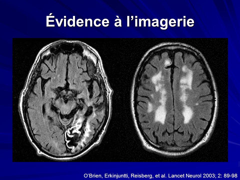 Évidence à limagerie OBrien, Erkinjuntti, Reisberg, et al. Lancet Neurol 2003; 2: 89-98