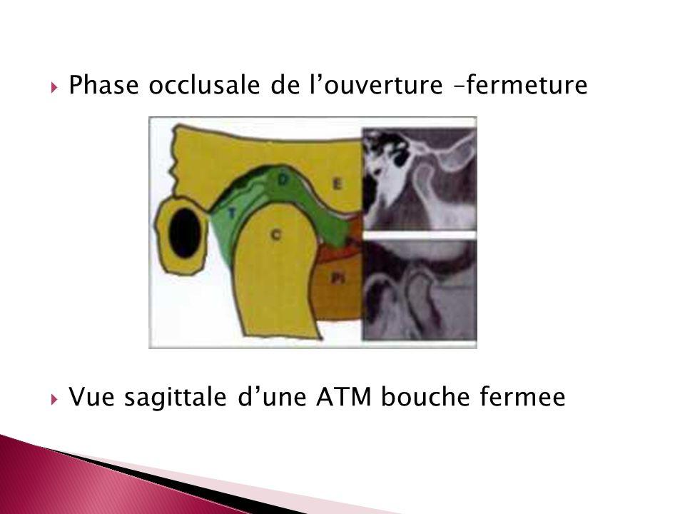 Phase occlusale de louverture –fermeture Vue sagittale dune ATM bouche fermee