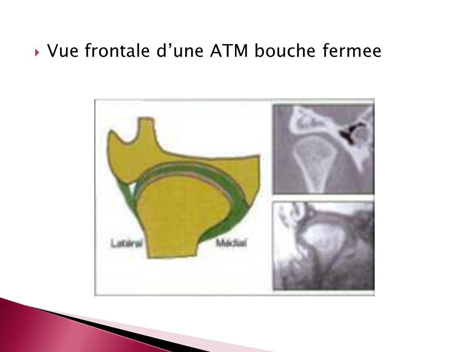 Vue frontale dune ATM bouche fermee