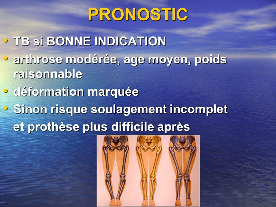PRONOSTIC TB si BONNE INDICATION TB si BONNE INDICATION arthrose modérée, age moyen, poids raisonnable arthrose modérée, age moyen, poids raisonnable