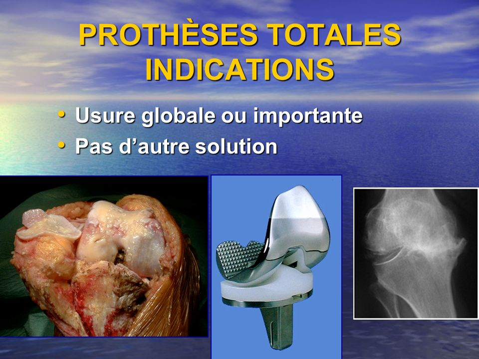 PROTHÈSES TOTALES INDICATIONS Usure globale ou importante Usure globale ou importante Pas dautre solution Pas dautre solution