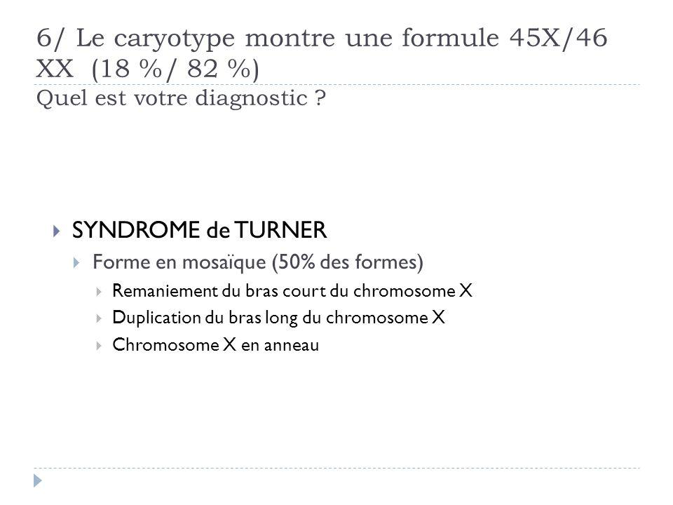 6/ Le caryotype montre une formule 45X/46 XX (18 %/ 82 %) Quel est votre diagnostic ? SYNDROME de TURNER Forme en mosaïque (50% des formes) Remaniemen