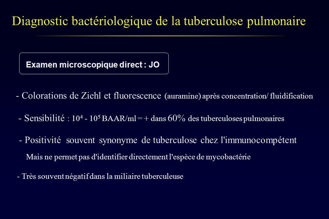 Diagnostic bactériologique de la tuberculose pulmonaire Examen microscopique direct : JO - Colorations de Ziehl et fluorescence (auramine) après conce