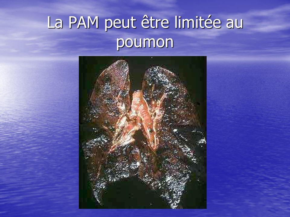 La PAM peut être limitée au poumon