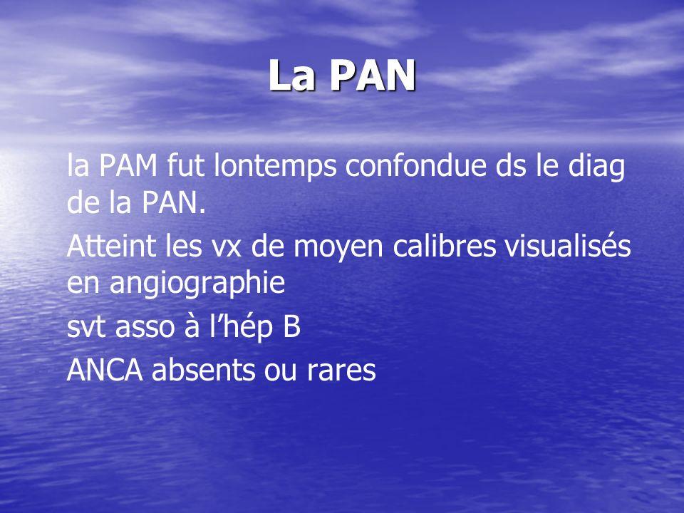 La PAN la PAM fut lontemps confondue ds le diag de la PAN. Atteint les vx de moyen calibres visualisés en angiographie svt asso à lhép B ANCA absents