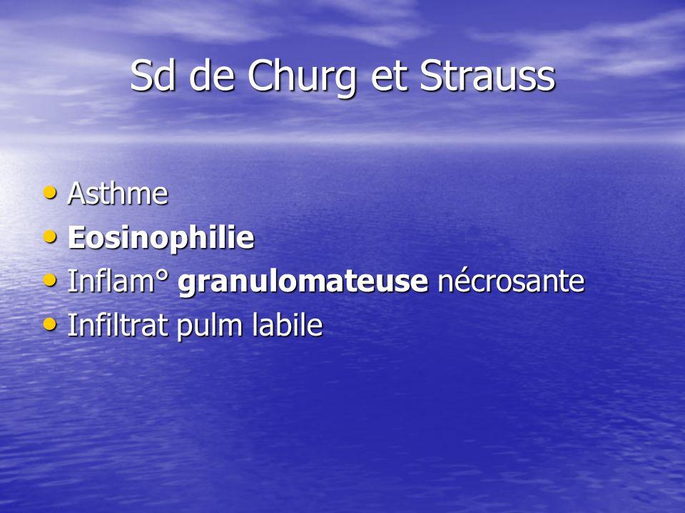 Sd de Churg et Strauss Asthme Asthme Eosinophilie Eosinophilie Inflam° granulomateuse nécrosante Inflam° granulomateuse nécrosante Infiltrat pulm labi