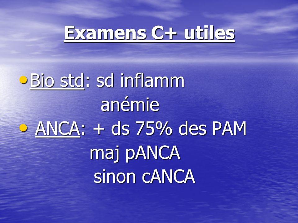 Examens C+ utiles Bio std: sd inflamm Bio std: sd inflamm anémie anémie ANCA: + ds 75% des PAM ANCA: + ds 75% des PAM maj pANCA maj pANCA sinon cANCA