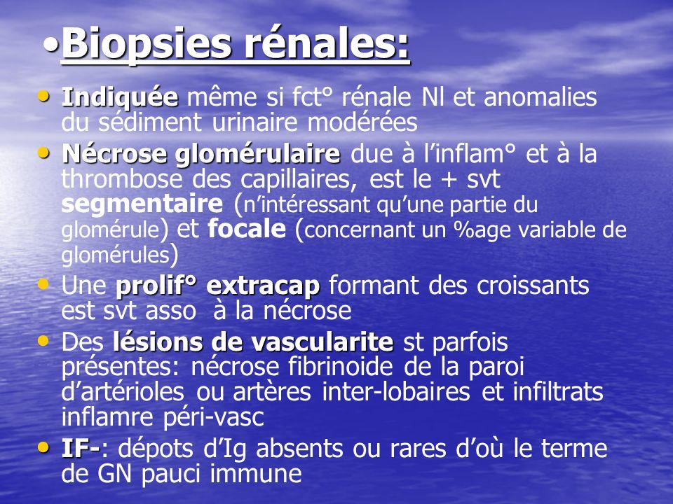 Biopsies rénales:Biopsies rénales: Indiquée Indiquée même si fct° rénale Nl et anomalies du sédiment urinaire modérées Nécrose glomérulaire Nécrose gl