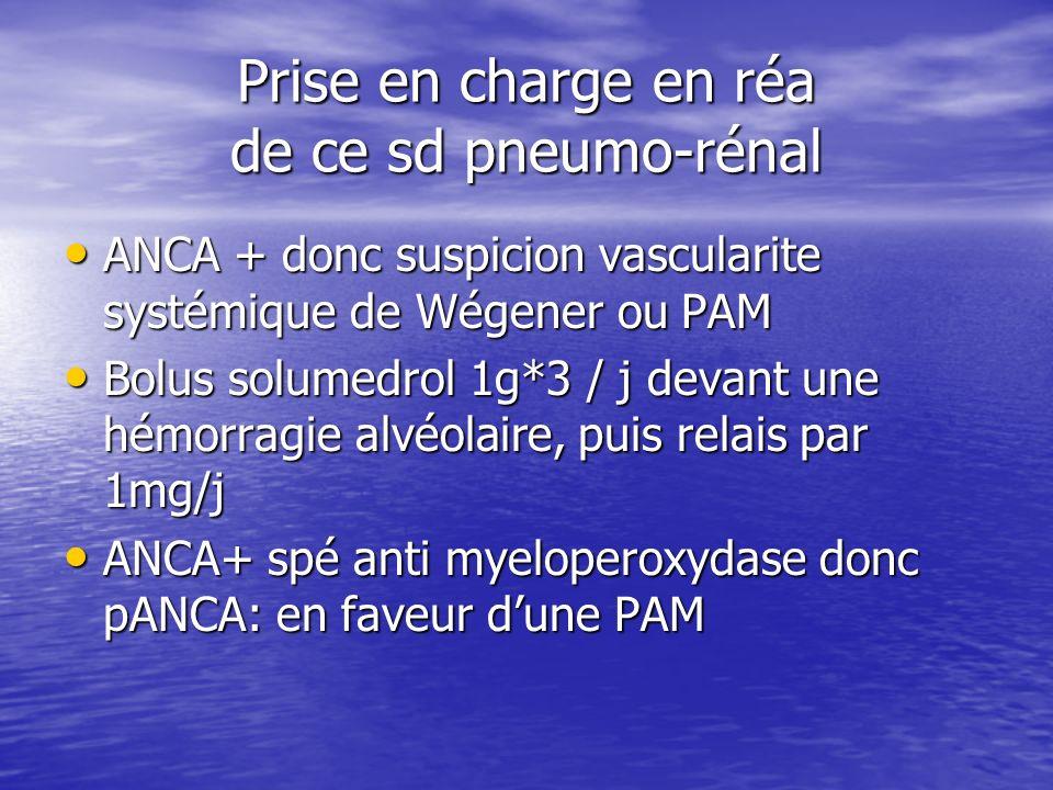 Prise en charge en réa de ce sd pneumo-rénal ANCA + donc suspicion vascularite systémique de Wégener ou PAM ANCA + donc suspicion vascularite systémiq