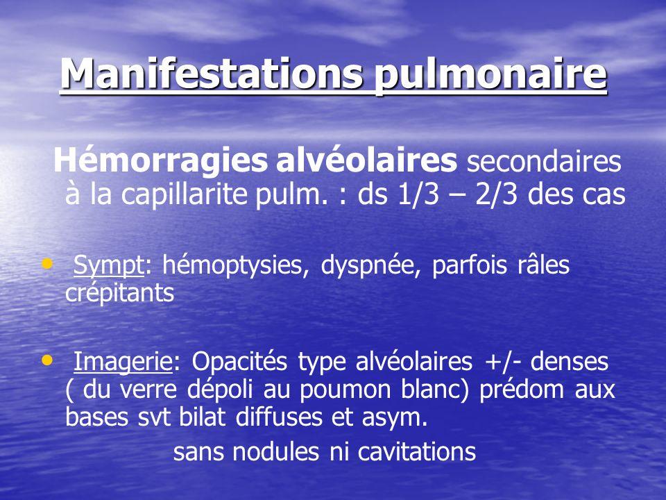 Manifestations pulmonaire Hémorragies alvéolaires secondaires à la capillarite pulm. : ds 1/3 – 2/3 des cas Sympt: hémoptysies, dyspnée, parfois râles