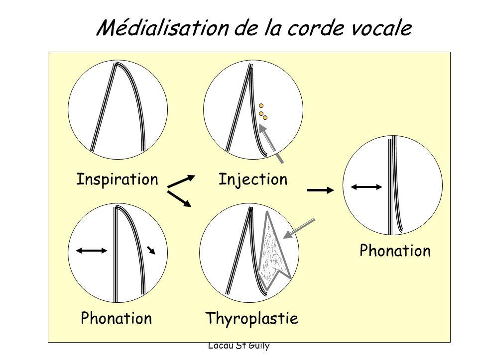 Cours D3 ORL Tenon, Périé, Lacau St Guily Médialisation de la corde vocale Injection Phonation Inspiration ThyroplastiePhonation