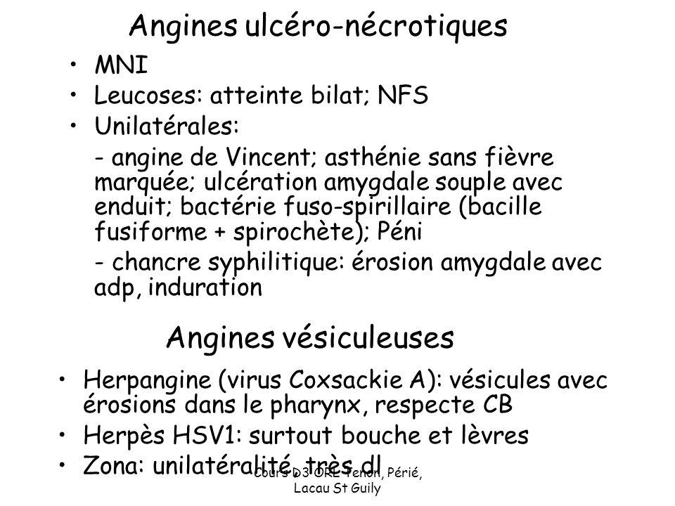 Cours D3 ORL Tenon, Périé, Lacau St Guily Angines vésiculeuses Herpangine (virus Coxsackie A): vésicules avec érosions dans le pharynx, respecte CB He