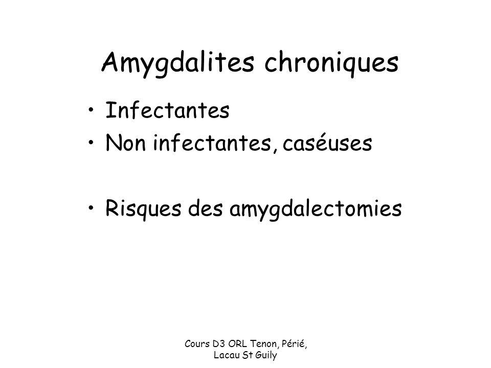 Cours D3 ORL Tenon, Périé, Lacau St Guily Amygdalites chroniques Infectantes Non infectantes, caséuses Risques des amygdalectomies