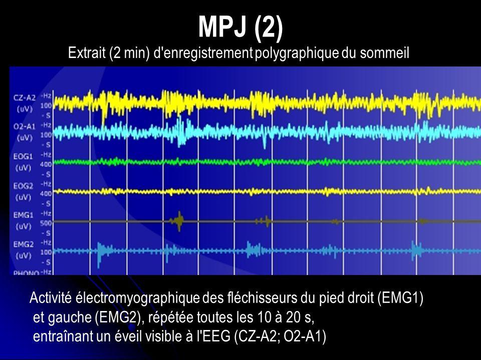 MPJ (2) Activité électromyographique des fléchisseurs du pied droit (EMG1) et gauche (EMG2), répétée toutes les 10 à 20 s, entraînant un éveil visible à l EEG (CZ-A2; O2-A1) Extrait (2 min) d enregistrement polygraphique du sommeil
