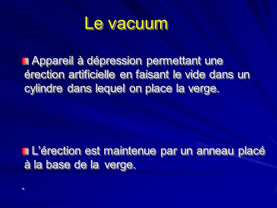Le vacuum Appareil à dépression permettant une érection artificielle en faisant le vide dans un cylindre dans lequel on place la verge.