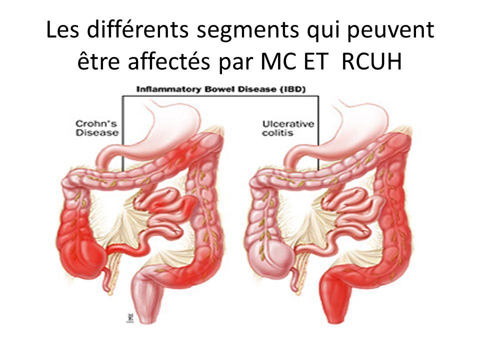 1.La maladie de CROHN Décrite en 1932 à NEW YORK Lésions inflammatoires pouvant affecter differents segments du tube digestif ( Intestin grele, colon (gros intestin)) Réponse immunologique anormale vis-à-vis de bactéries de la flore intestinale, favorisée par un disfonctionnement des cellules épithéliales suite à des mutations génétiques.