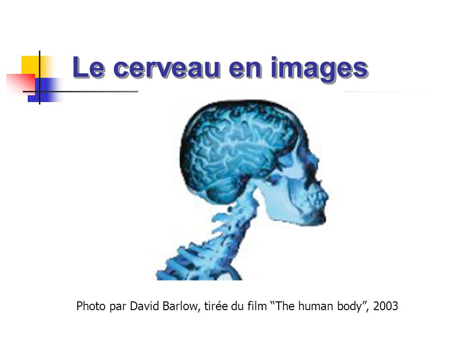 Le cerveau en images Le cerveau en images Photo par David Barlow, tirée du film The human body, 2003