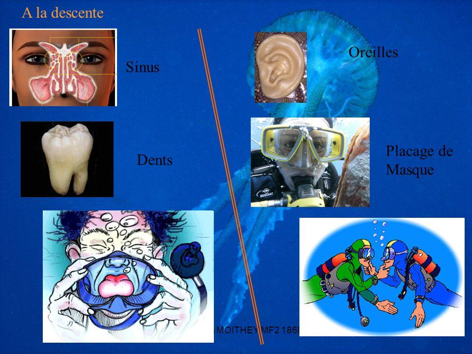 *** Yohann MOITHEY MF2 186831 Oreilles Dents Sinus Placage de Masque A la descente