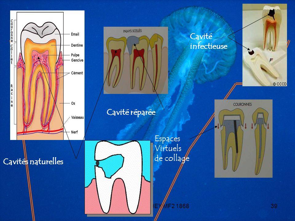 *** Yohann MOITHEY MF2 186839 Cavités naturelles Cavité infectieuse Cavité réparée Espaces Virtuels de collage