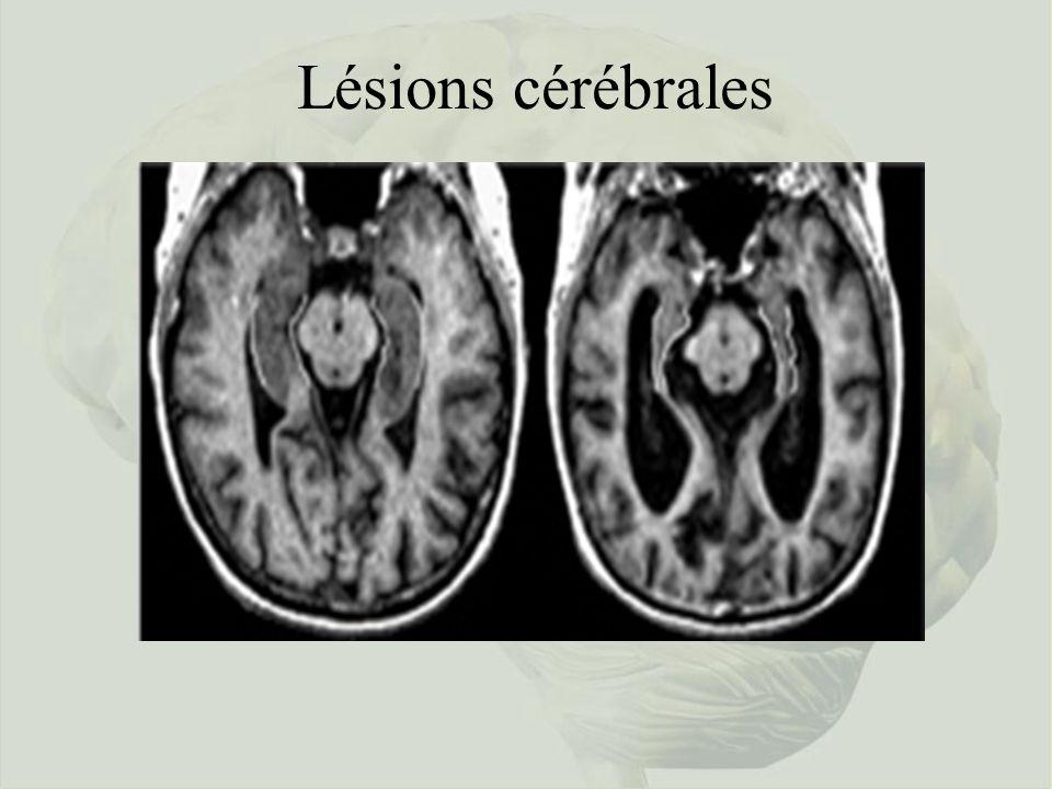 Lésions cérébrales