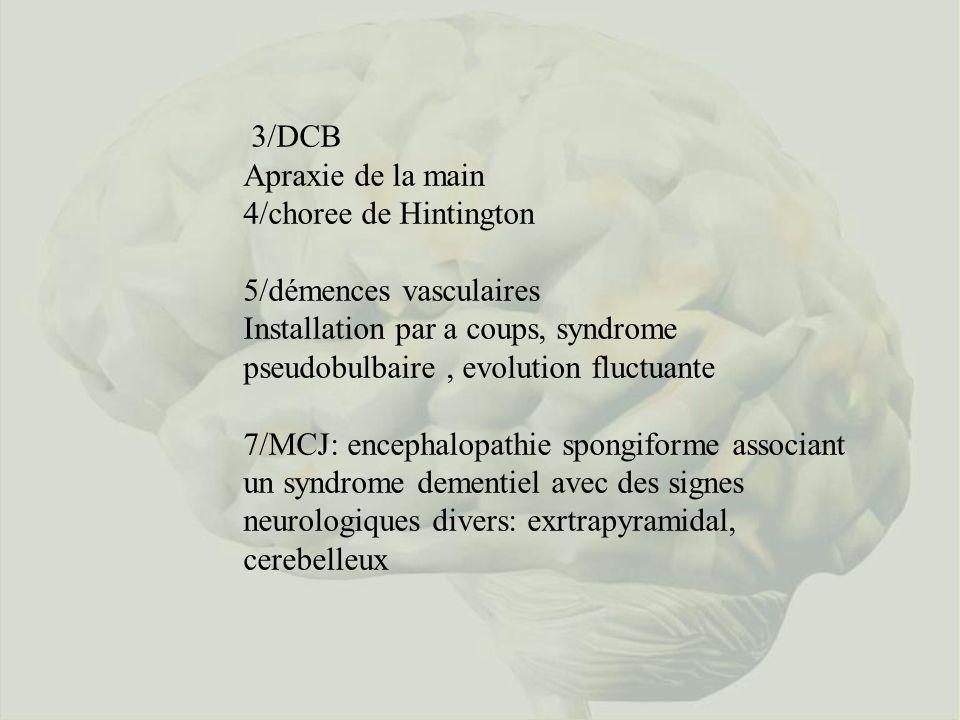3/DCB Apraxie de la main 4/choree de Hintington 5/démences vasculaires Installation par a coups, syndrome pseudobulbaire, evolution fluctuante 7/MCJ: encephalopathie spongiforme associant un syndrome dementiel avec des signes neurologiques divers: exrtrapyramidal, cerebelleux