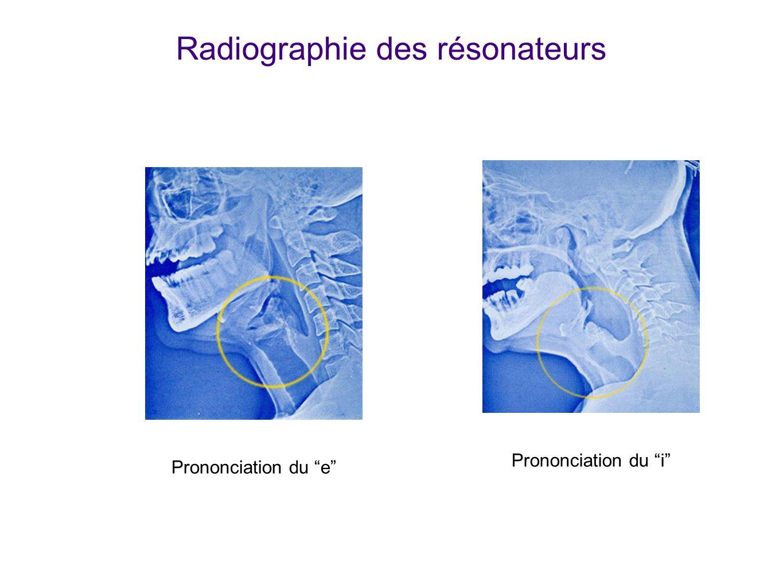 Prononciation du ePrononciation du i Radiographie des résonateurs Radiographies. A Comparer avec diapo précédente. Source: IRCAM : http://mediatheque.