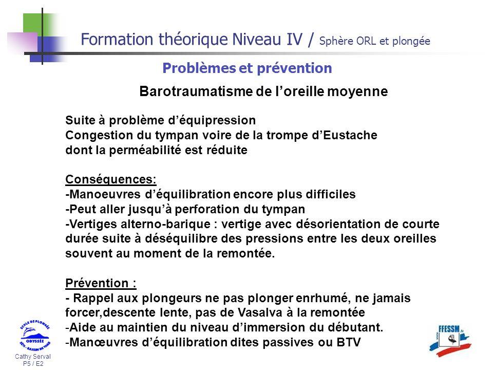 Cathy Serval P5 / E2 Formation théorique Niveau IV / Sphère ORL et plongée Problèmes et prévention Barotraumatisme de loreille moyenne Suite à problèm