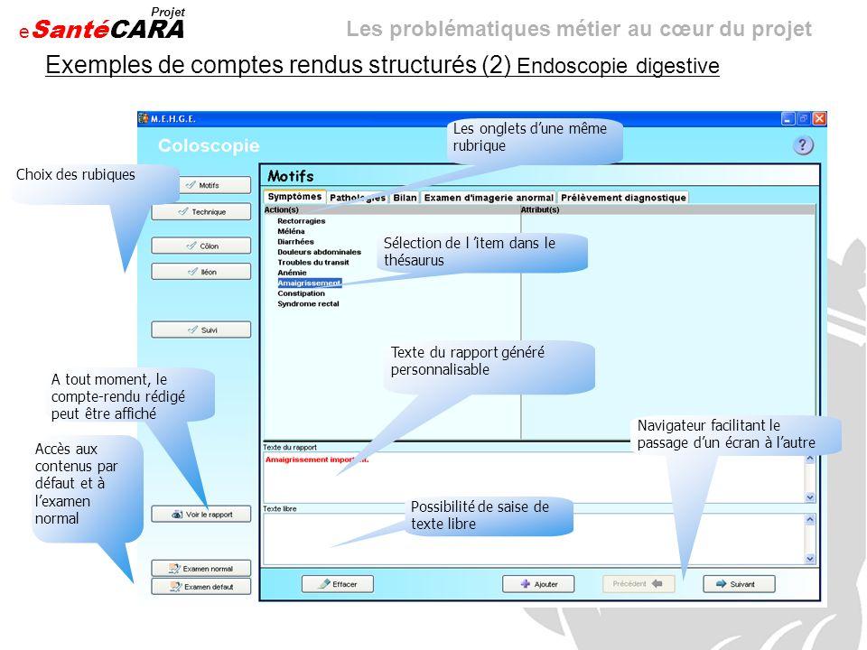 e Santé Projet CARA Exemples de comptes rendus structurés (2) Endoscopie digestive Choix des rubiques Les onglets dune même rubrique Sélection de l it