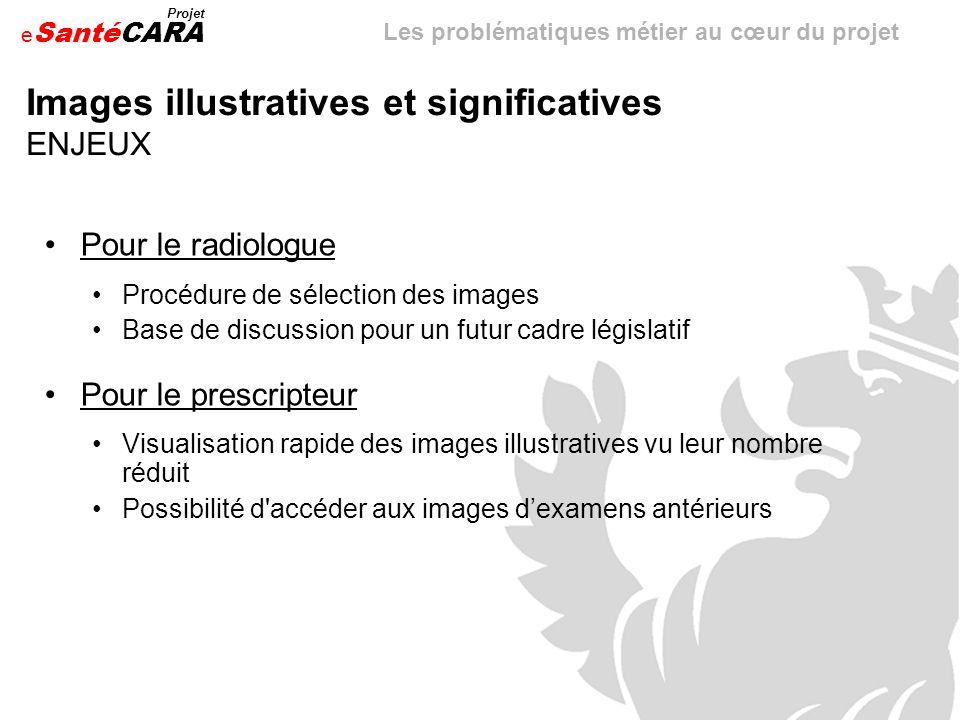 e Santé Projet CARA Images illustratives et significatives ENJEUX Pour le radiologue Procédure de sélection des images Base de discussion pour un futu