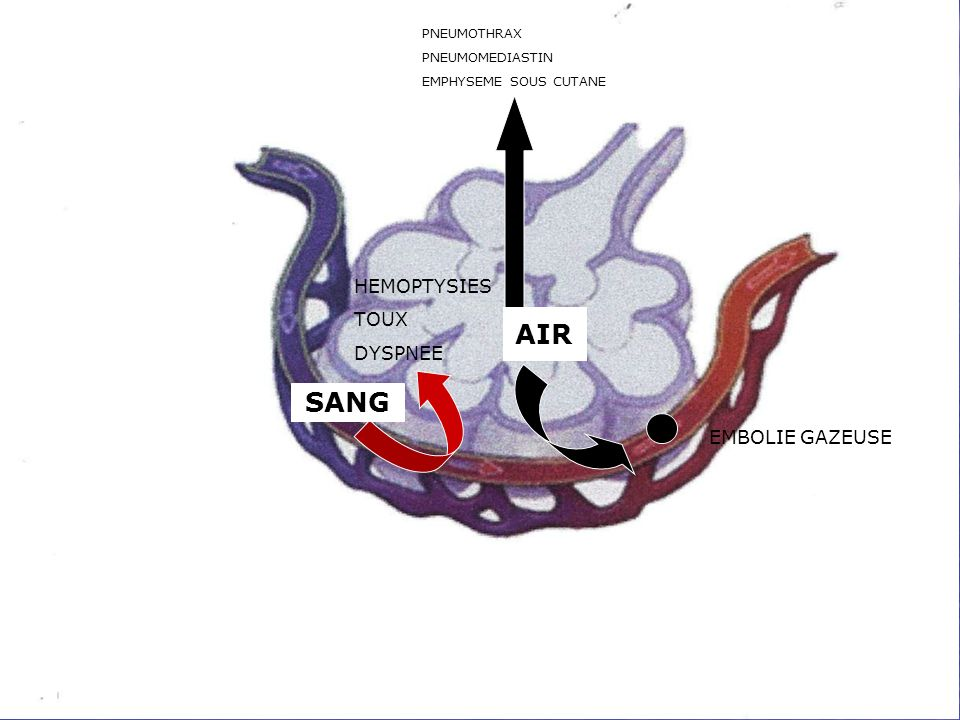 AIR SANG PNEUMOTHRAX PNEUMOMEDIASTIN EMPHYSEME SOUS CUTANE HEMOPTYSIES TOUX DYSPNEE EMBOLIE GAZEUSE