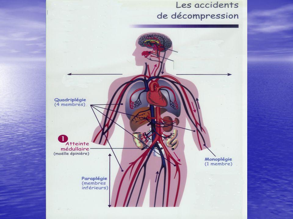 SIGNES EN FAVEUR DES BAROTRAUMATISMES(IMMEDIATS) OREILLE MOYENNE OREILLE MOYENNEDouleursAcouphènes Surdité, vertiges OREILLE INTERNE OREILLE INTERNE Troubles de laudition Vertiges, vomissements Troubles de léquilibre SINUS SINUS Douleurs, épistaxis ESTOMAC ESTOMAC Douleurs, vomissements DENTS DENTS MASQUE MASQUE
