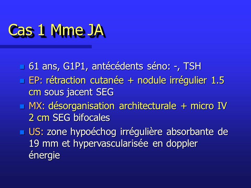 Cas 1 Mme JA n 61 ans, G1P1, antécédents séno: -, TSH n EP: rétraction cutanée + nodule irrégulier 1.5 cm sous jacent SEG n MX: désorganisation architecturale + micro IV 2 cm SEG bifocales n US: zone hypoéchog irrégulière absorbante de 19 mm et hypervascularisée en doppler énergie