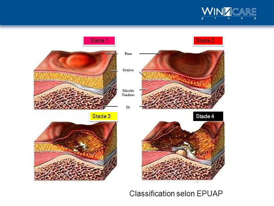 Stade 1 Stade 2 Stade 4 Stade 3 Peau Graisse Muscles Tendons Os Classification selon EPUAP