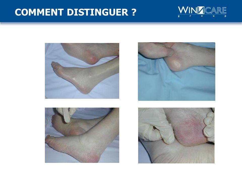 Atteinte dune partie de la peau atteignant lépiderme et/ou le derme.