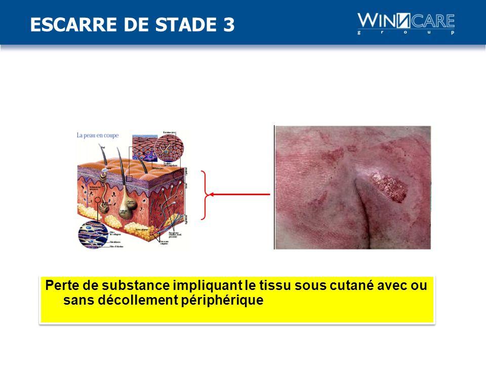 Perte de substance impliquant le tissu sous cutané avec ou sans décollement périphérique ESCARRE DE STADE 3