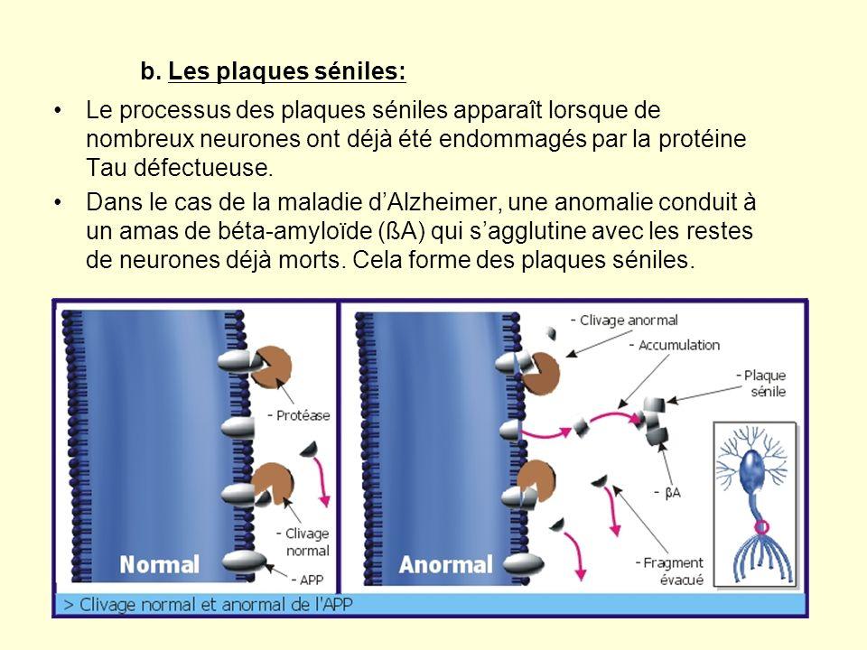 b. Les plaques séniles: Le processus des plaques séniles apparaît lorsque de nombreux neurones ont déjà été endommagés par la protéine Tau défectueuse