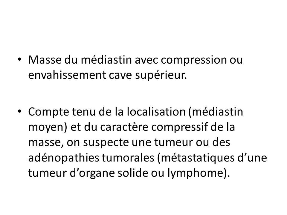 Masse du médiastin avec compression ou envahissement cave supérieur. Compte tenu de la localisation (médiastin moyen) et du caractère compressif de la