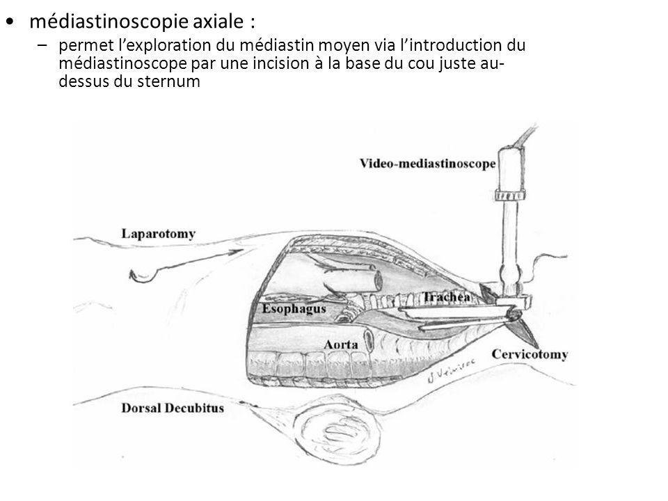 médiastinoscopie axiale : –permet lexploration du médiastin moyen via lintroduction du médiastinoscope par une incision à la base du cou juste au- des