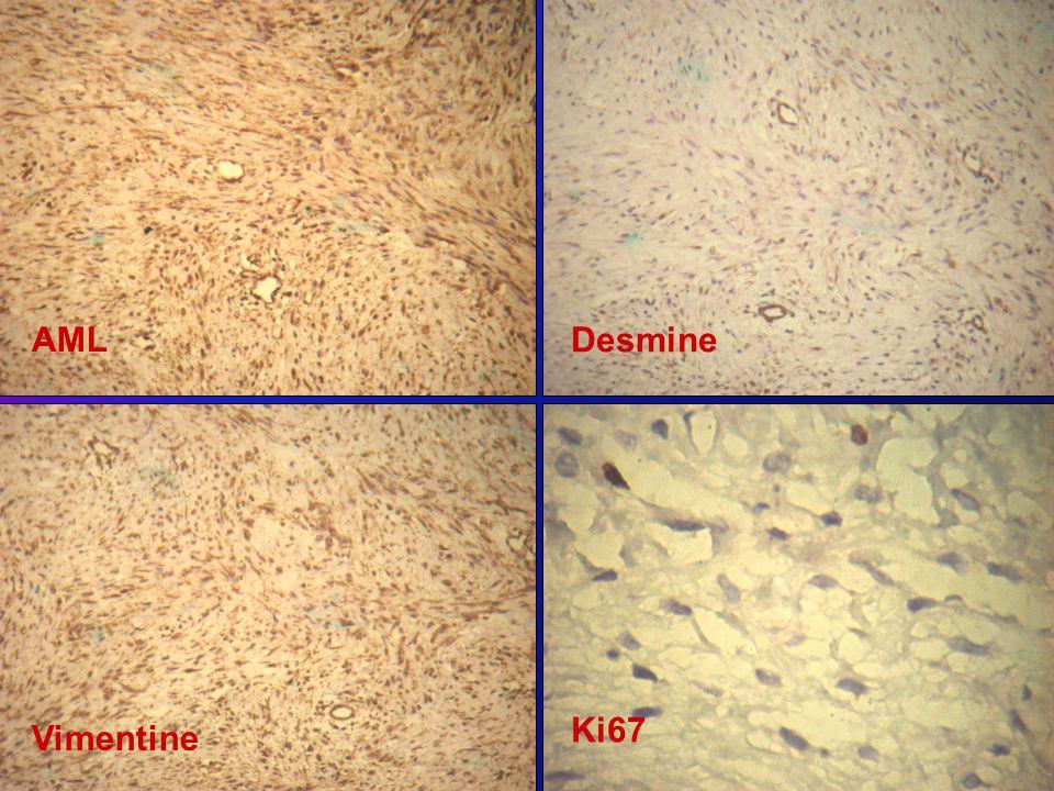 AML Desmine Vimentine Ki67