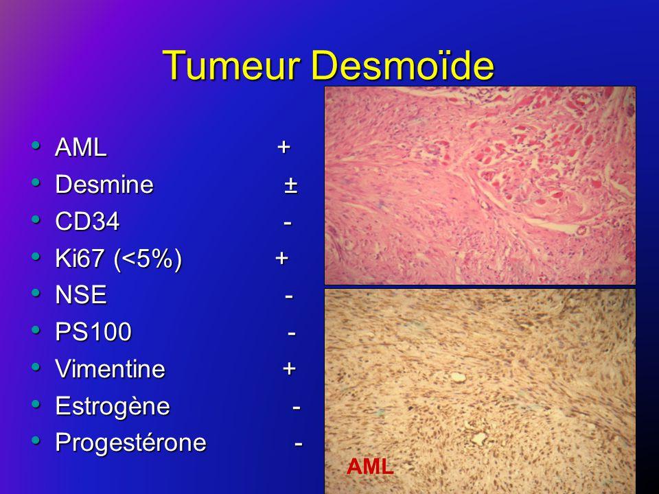 Tumeur Desmoïde AML + AML + Desmine ± Desmine ± CD34 - CD34 - Ki67 (<5%) + Ki67 (<5%) + NSE - NSE - PS100 - PS100 - Vimentine + Vimentine + Estrogène