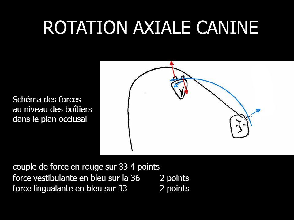 Schéma des forces au niveau des boîtiers dans le plan occlusal ROTATION AXIALE CANINE couple de force en rouge sur 33 4 points force vestibulante en bleu sur la 362 points force lingualante en bleu sur 33 2 points