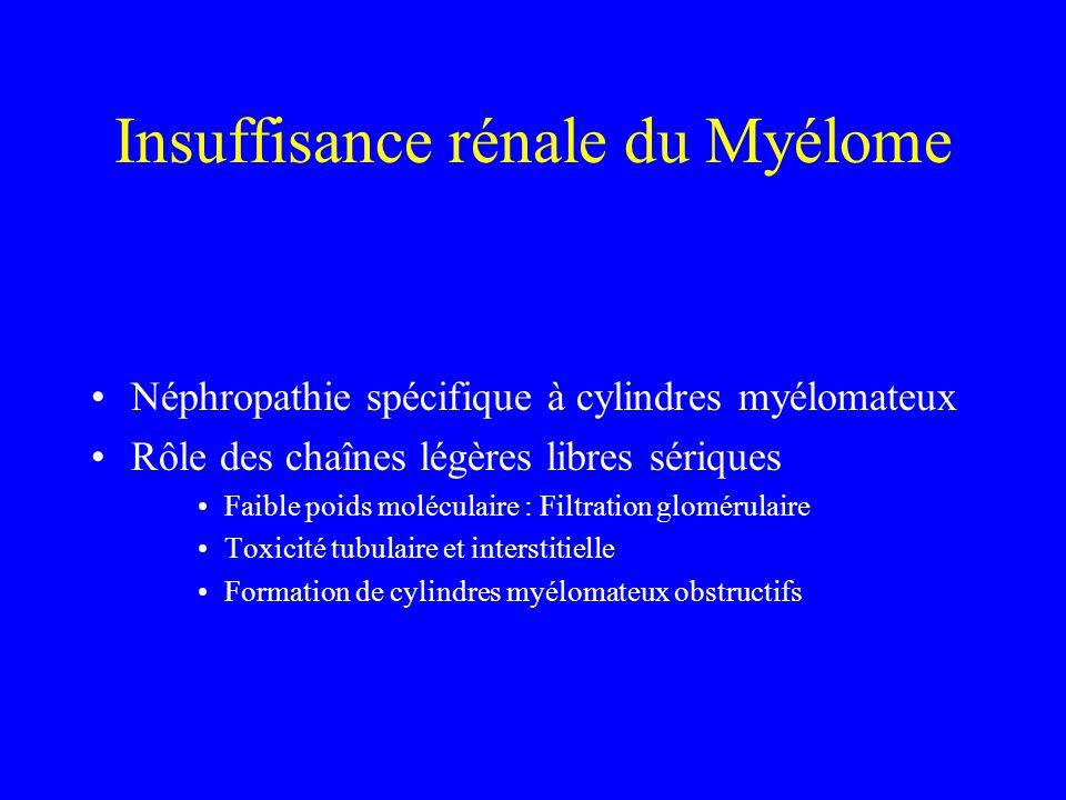 Insuffisance rénale du Myélome Néphropathie spécifique à cylindres myélomateux Rôle des chaînes légères libres sériques Faible poids moléculaire : Fil
